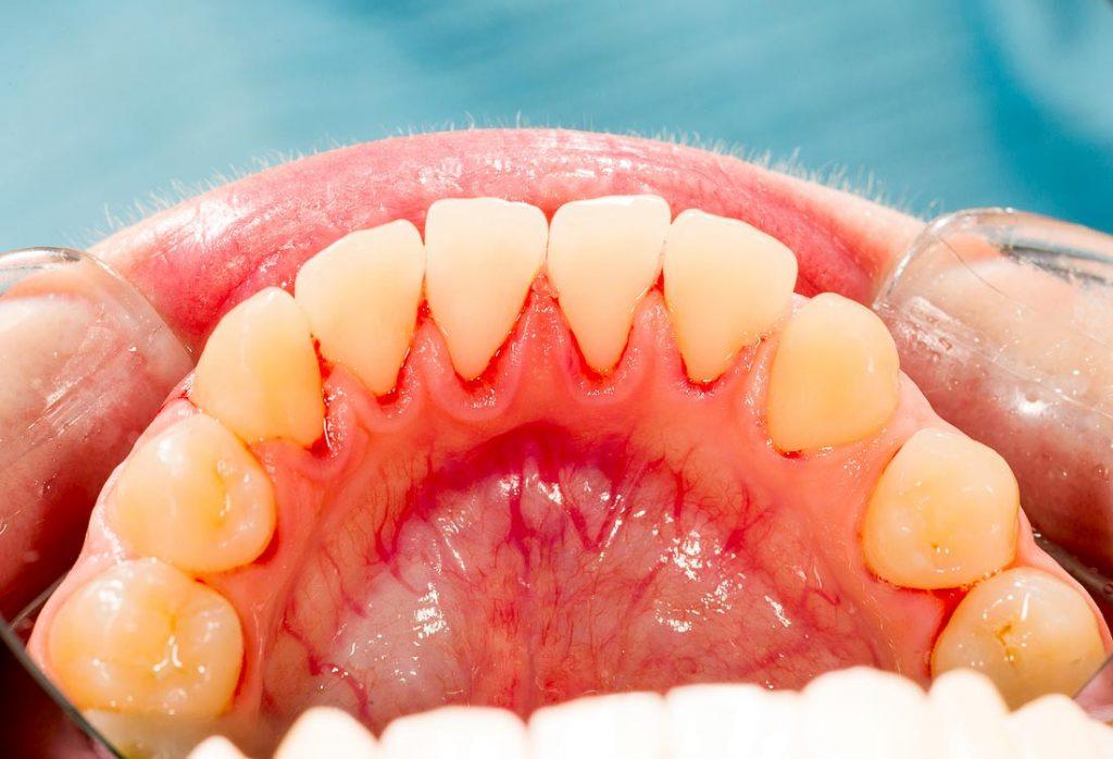 Apatinio žandikaulio vidinė dantų pusė po burnos higienos. Pašalinus dantų akmenis, dantys balinami