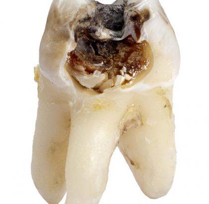 Dantukas, nepatyręs savalaikės burnos higienos ir gydymo