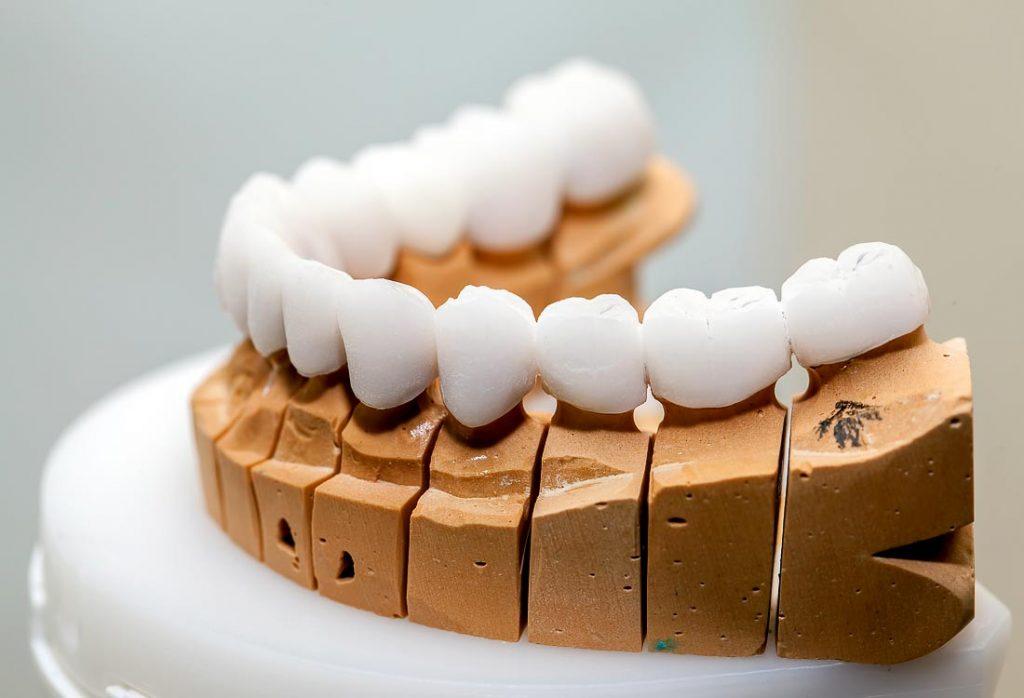 Cirkonio pagrindu porceliano paviršiumi dirbtiniai dantys visada švytės balta švaria spalva tarsi natūralūs nuosavi dantys