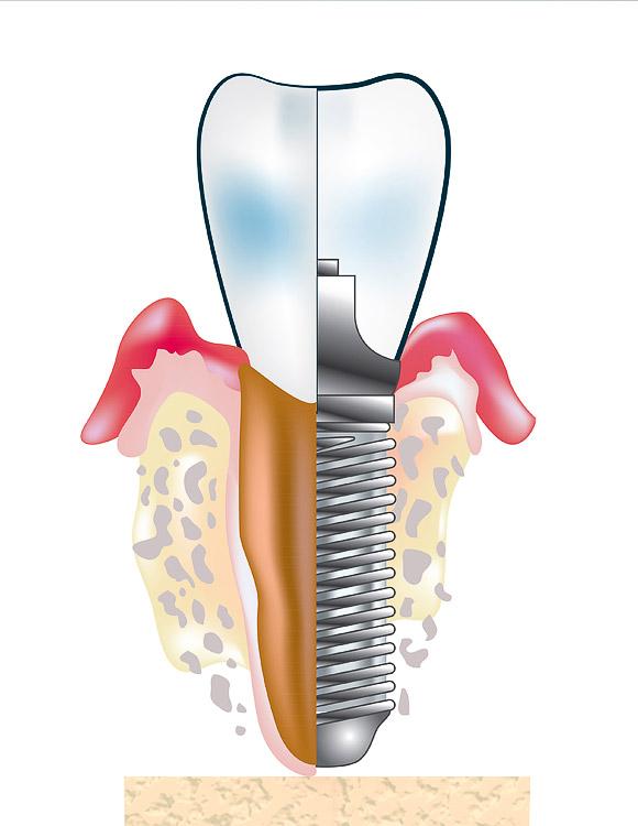 Danties implanto, suaugusio su žandikaulio kaulu, ir prisukto dantuko išorinės bei atidengtos dalies schema