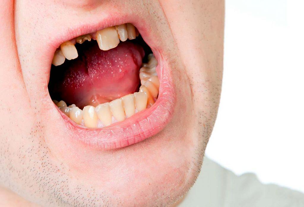 Į šį danties likutį pagal jo šaknies būklę dar galima tvirtinti įklotą ir jį apvilkti karūnėle, – tai pigiau ir paprasčiau, nei implantuoti ar protezuoti dantų tiltu