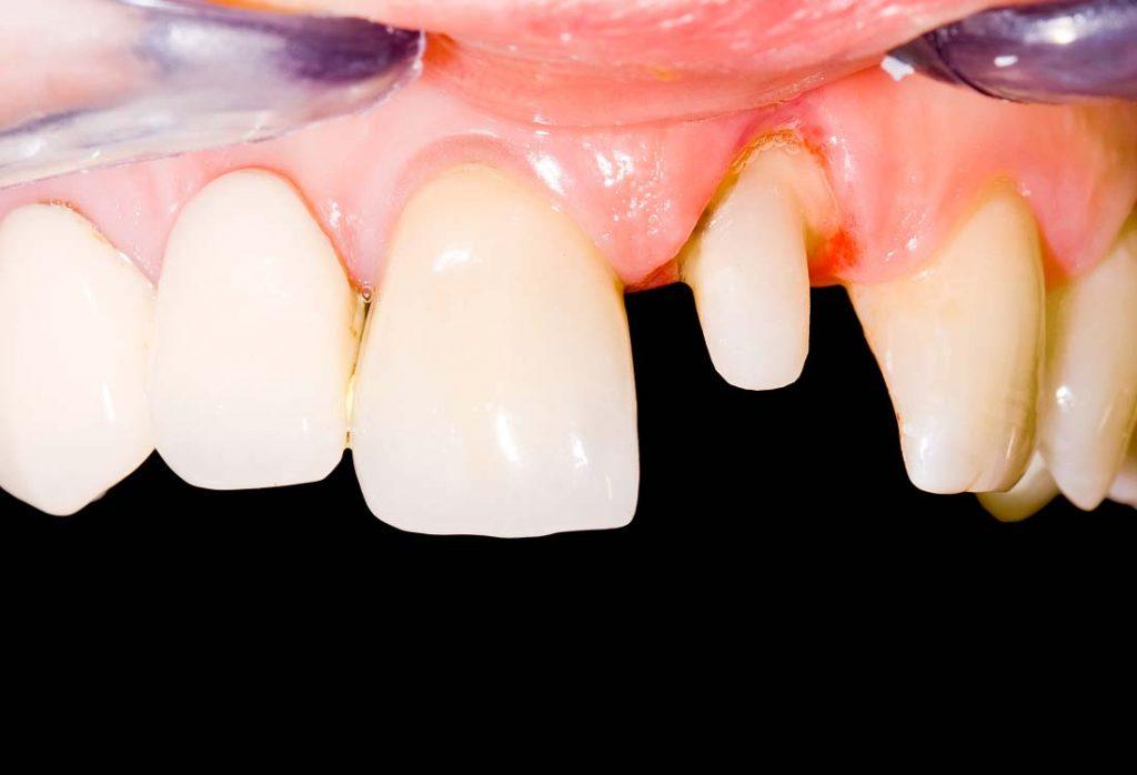 Pavienį nušlifuotą nedidelį danties kiekį galima apvilkti tvirta, estetiška karūnėle, ir šoniniai dantys liks sveiki, nešlifuoti
