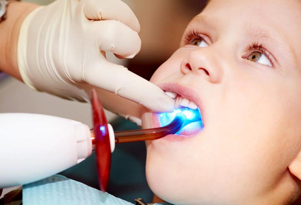 Vaiko dantuko plombavimas šviesoje kietėjančia plomba