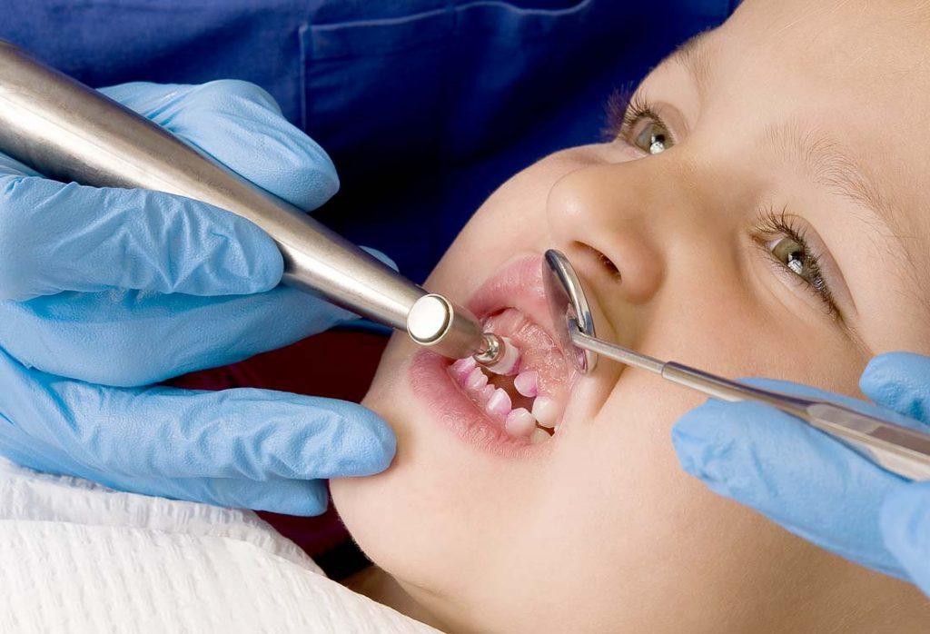 Odontologas poliruoja vaiko dantukus