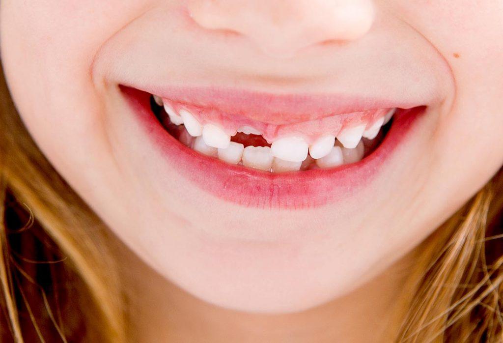 Vietoje laiku ir tinkamai ištraukto pieninio dantuko taisyklingai dygsta nuolatinis dantis
