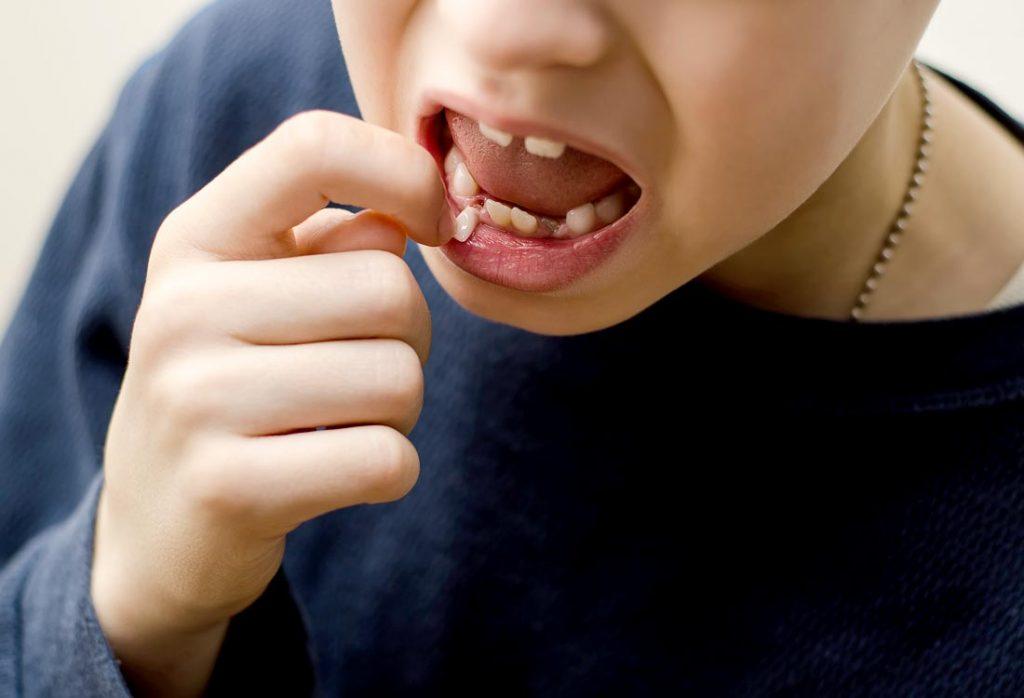Rizikinga ir nehigieniška traukti dantukus patiems vaikams