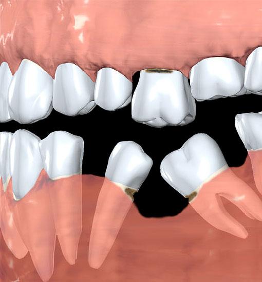 Dantų migravimas, arba pakrypimas į prarasto danties ertmę; danties išilgėjimas viršutiniame žandikaulyje; nykstantis žandikaulio kaulas