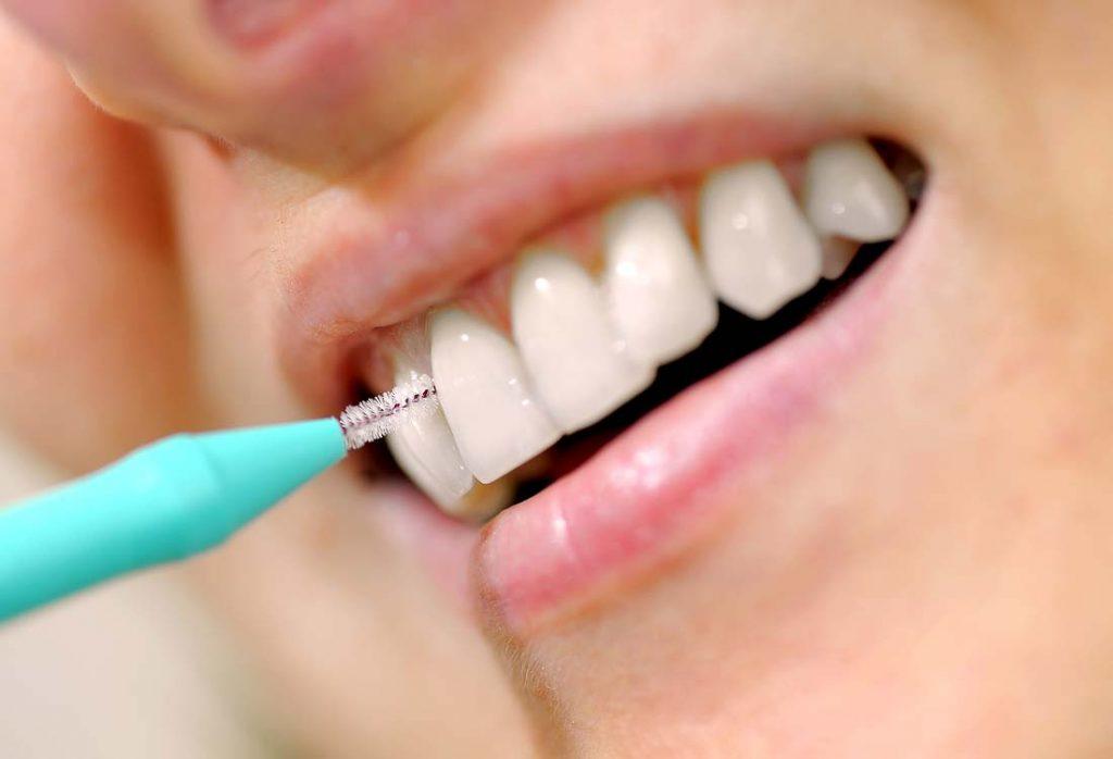 Tarpdančių šepetukai išvalo net ir labai sunkiai pasiekiamas vietas, kurių neišvalys dantų šepetėlis