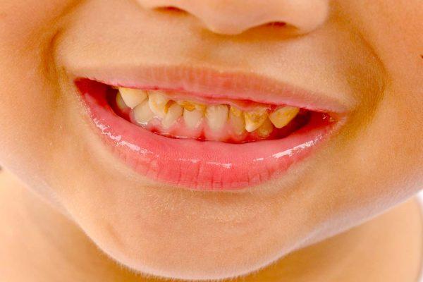 Dantų ėduonis – 21-ojo amžiaus rykštė, pasirenkanti vis jaunesnes savo aukas