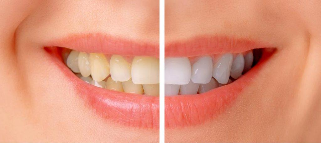 Laikas netolygiai gelsvina visus dantis, o šiuolaikinės technologijos visada juos balina pagal aiškų sniego spalvos pavyzdį
