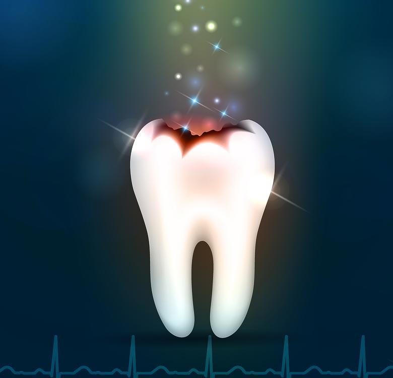 Negydoma pažeisto karieso danties vieta linkusi gilėti ir plėstis