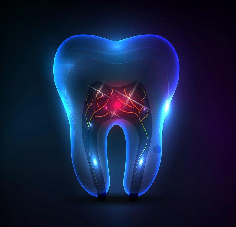 Negydoma plintanti infekcija danties viduje gresia danties gyvybingumo arba danties praradimu