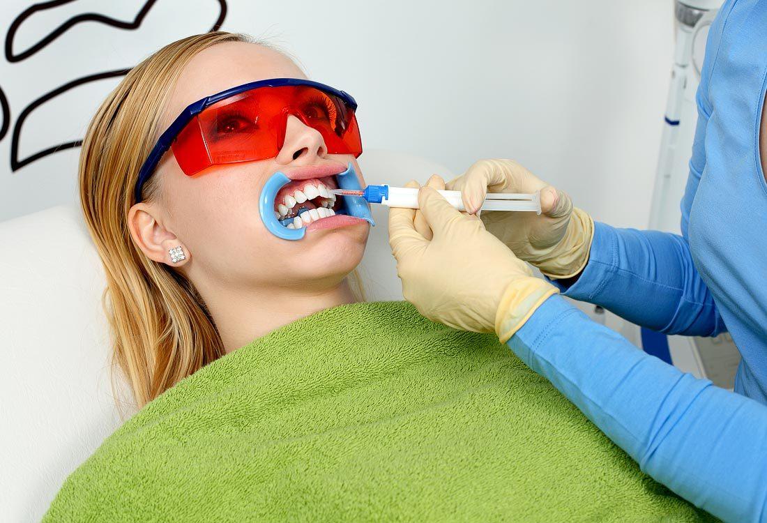 dantų balinimo gelis