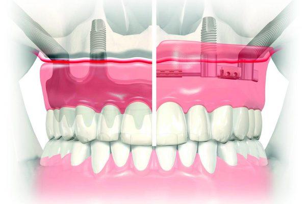 Ilgieji dantų implantai Zygoma;  kairėje – frezuotas karkasas su apdaila, dešinėje – dantų implantai, sujungti sija