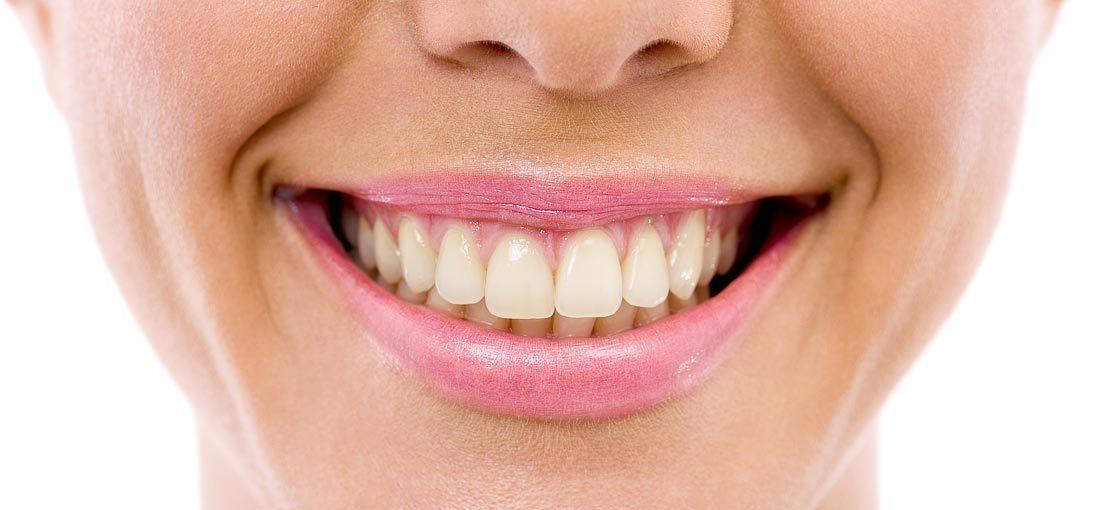 Increasingly discoloured teeth before bleaching
