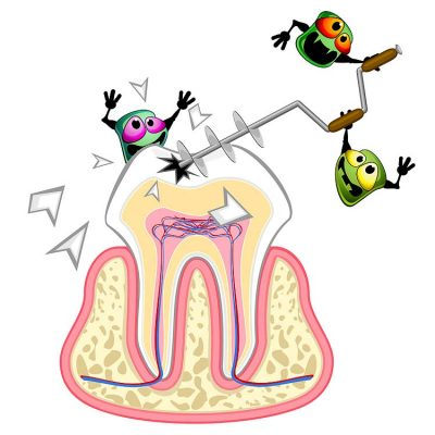 Don't be fooled: a soothed toothache doesn't necessarily stop the harmful damage caused by bacteria in the infected tooth