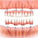 """""""Visi ant 4"""" bedančių žandikaulių dantų implantavimo privalumai"""