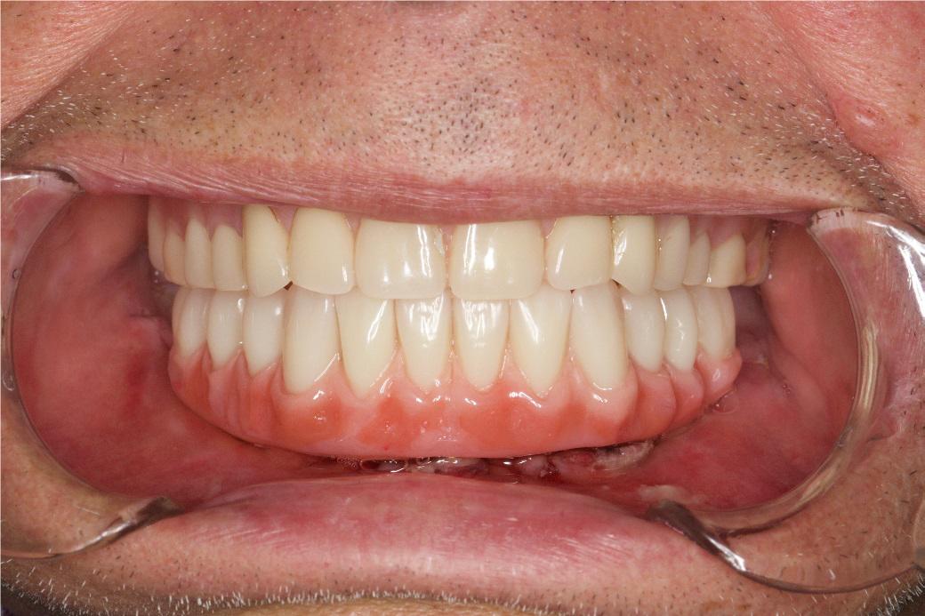 Trefoil dantys