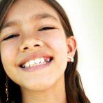 Valstybė tam skiria tūkstančius: ar galima vaikams implantuoti dantis?