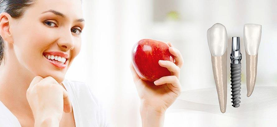 Danties implantas – lyg nuosavo danties šaknis