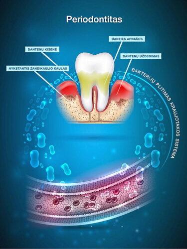 Periodontitas – dažna dantų praradimo priežastis