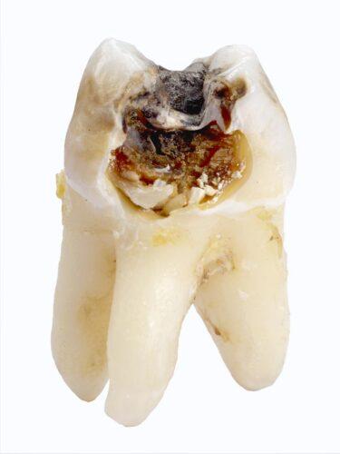 Negydomas dantų ėduonis – dažna dantų praradimo priežastis