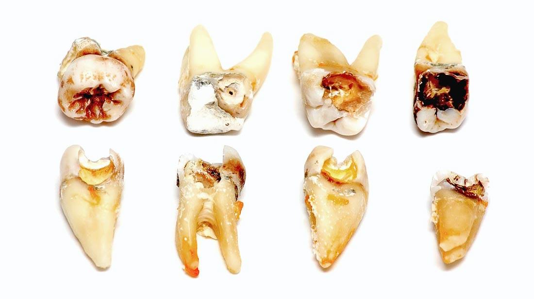 Paprastas danties rovimas