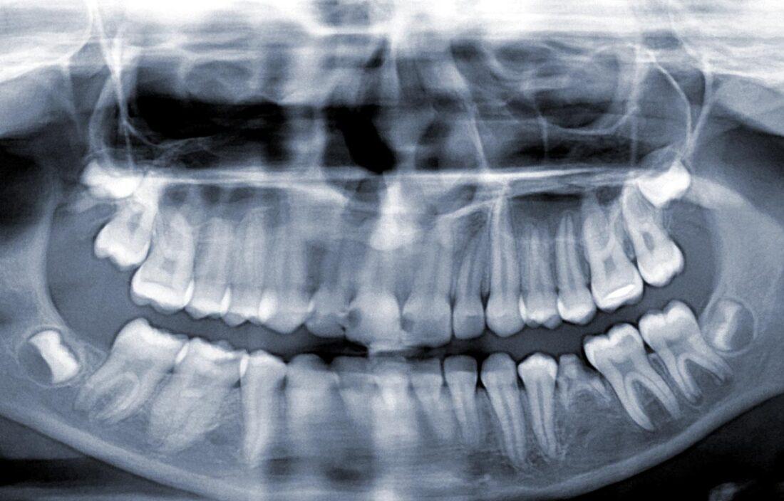 Pilnai retinuotų dantų rovimas