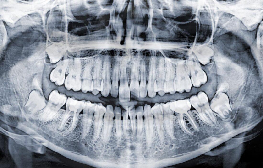 Nepilnai retinuotų dantų rovimas