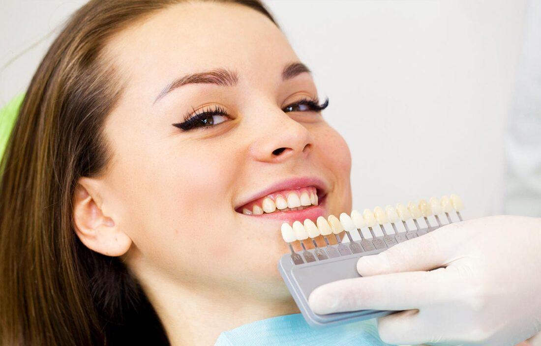 Dantų atspalvio nustatymas prieš balinimą