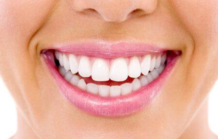 Dantų balinimas, balti dantys po balinimo