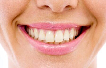 Dantų balinimas, gelsvi dantys prieš balinimą