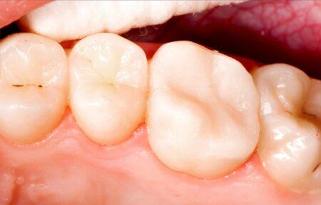 Dantų kanalų (endodontinis) gydymas