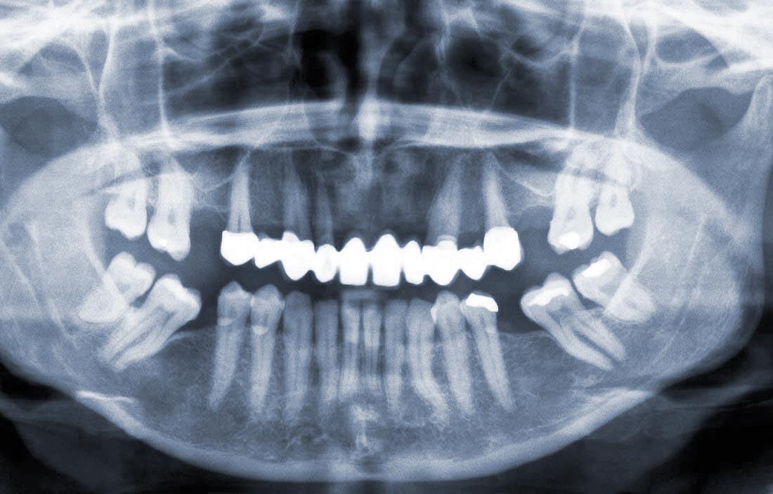 Žandikaulio kaulo nykimo priežastys ir pasekmės