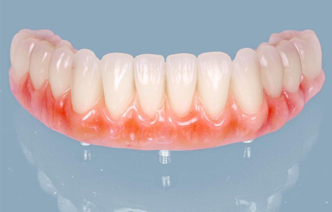 Dantų implantai, implantacija