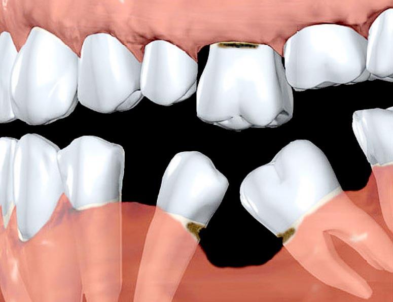 Prarastų dantų pasekmės